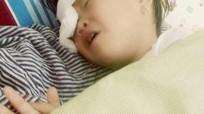 Bé gái 2 tuổi ở Nghệ An bị gà chọi mổ mù một mắt
