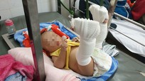 Vợ bỏ đi, chồng đánh gãy chân con trai 4 tháng tuổi vì khóc quấy không chịu ngủ