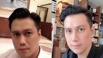 Diễn viên Việt Anh bị chê xấu sau phẫu thuật thẩm mỹ