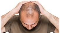 Chứng hói đầu có thể là dấu hiệu của bệnh tim