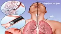 Bệnh nhân tử vong sau nội soi phế quản