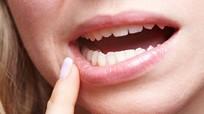 8 dấu hiệu ung thư miệng không nên bỏ qua