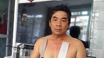 """Kỳ lạ: Người đàn ông Việt có khả năng """"hút"""" inox"""