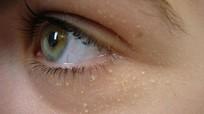 3 cách dân gian trị mụn thịt quanh mắt cực chất