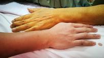 8 dấu hiệu cảnh báo bạn mắc bệnh gan