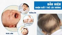 Điều bố mẹ cần biết về bệnh còi xương ở trẻ