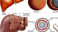 5 nhóm đối tượng dễ mắc ung thư gan