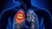 8 dấu hiệu cảnh báo phổi bạn có vấn đề