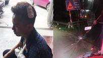 """Nghệ An: Phụ xe khách """"tố"""" bị nhóm thanh niên đánh gãy tay"""