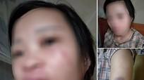 Đặt hàng qua mạng, người vợ mang thai ở Nghệ An bị chồng đánh thâm tím