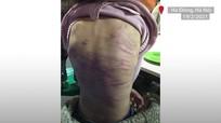 Hai người xâm hại, bạo hành bé gái 12 tuổi bị khởi tố