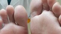 Cách phòng tránh biến chứng bàn chân cho bệnh nhân đái tháo đường