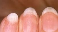 Tự chẩn đoán bệnh qua màu sắc của móng tay