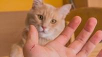 Cậu bé mắc bệnh tâm thần vì bị mèo cào