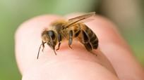 Hướng dẫn các bước sơ cứu kịp thời khi bị ong đốt