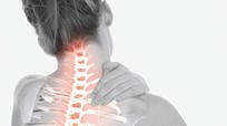 5 biểu hiện đau mỏi cổ vai gáy có thể gây teo cơ, tàn phế