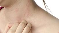 Cách phòng ngừa 4 bệnh ngoài da dễ mắc vào mùa Đông