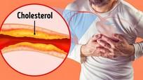 8 dấu hiệu thầm lặng của tắc động mạch không nên bỏ qua