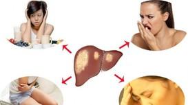 6 dấu hiệu cảnh báo gan chứa đầy độc tố