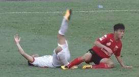 Cận cảnh chấn thương kinh hoàng của cựu tuyển thủ U20 Việt Nam