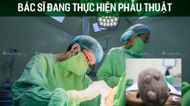 Loại bỏ hơn 10 khối u mọc quanh đầu người đàn ông 46 tuổi