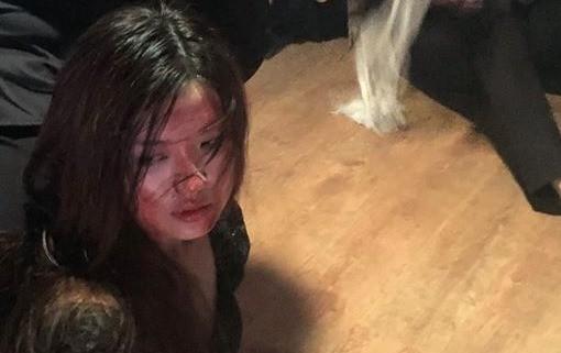 Diễn viên Lương Thanh bị đánh bầm dập trong 'Hoa hồng trên ngực trái'