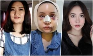 Hình ảnh đáng sợ của hotgirl thời kỳ phẫu thuật