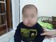 Bé trai 17 tháng tuổi bị suy thượng thận do uống thuốc ho chứa corticoid