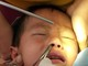 Tắm khe suối ngày lễ, người dân ở Nghệ An bị đỉa chui vào mũi