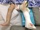 Bé gái 1 tuổi bị mẹ nuôi dùng khúc gỗ đánh gãy chân