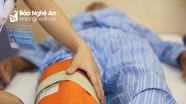 Phương pháp điều trị cứng khớp gối hiệu quả tại Bệnh viện Phục hồi chức năng Nghệ An