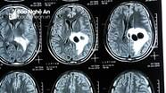 Ăn tiết canh, bệnh nhân bị sán làm tổ trong não
