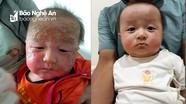Đừng chủ quan với bệnh viêm da cơ địa (chàm sữa) ở trẻ nhỏ