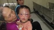 Nghệ An: Nghi vấn bé trai hai tuổi bị bạo hành