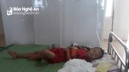 Bé trai lớp 3 bị ong vò vẽ đốt nhập viện cấp cứu