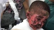 Nghịch bật lửa đốt giấy gây cháy, hai cháu bé ở Nghệ An bị bỏng nặng