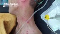 2 bố con ở Nghệ An bị ong đốt hàng trăm nốt