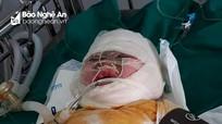 Cháu bé bị bỏng vôi nguy kịch cần được giúp đỡ