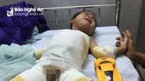 Xót thương hoàn cảnh bé trai bị bỏng nặng