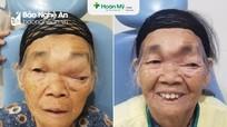 Cụ bà 88 tuổi bị mù mắt do mắc u nhầy xoang trán khổng lồ