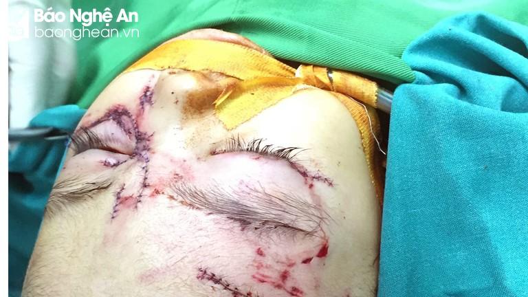 Bé gái 31 tháng tuổi nhập viện khẩn cấp do bị chó nhà tấn công
