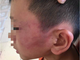 Xác minh vụ bé trai 12 tuổi nghi bị mẹ kế đánh