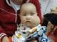 Cháu bé 8 tháng tuổi ở Nghệ An bị khối u lớn vùng hàm mặt