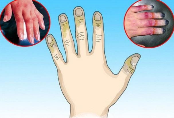 9 mẹo dùng gel lô hội trị đủ vấn đề về da